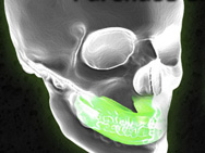 shock-doctor-mouth-guard